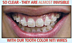 Invisible with our Tooth Color Niti Wires