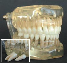 Removable Teeth, Class I, Articulated