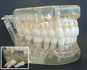 Removable Teeth, Class I, Articulated, Large