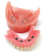 Mini 2.2 mm Ball Implant Denture Model